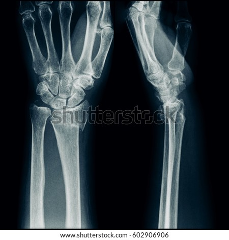 film xray wrist ap lateral view fracture stock photo royalty free 602906906 shutterstock. Black Bedroom Furniture Sets. Home Design Ideas