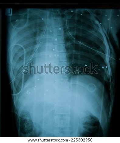 Film Xray image of a bullet from gun in human chest - stock photo