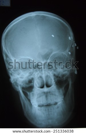 Film Xray images shot from a gun in the man's skull.