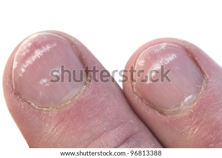 Fingernails closeup with the condition called leukonychia, white lines under the nail. - stock photo