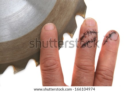 FINGERS VS TABLE SAW Table saw  accident