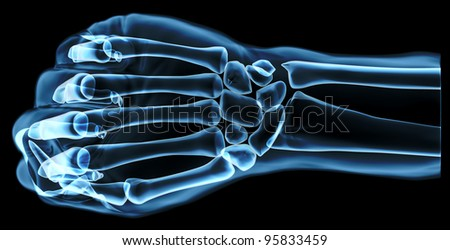Fist under the x-rays, top view - stock photo