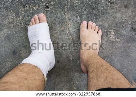 Foot and Ankle injury with bandage - stock photo