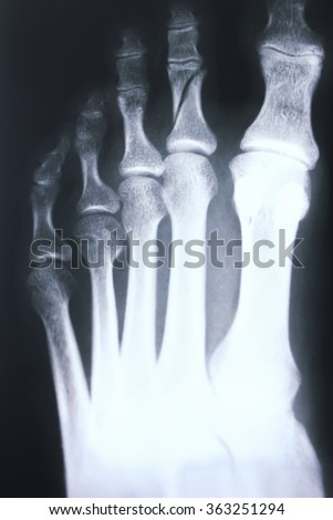 Foot and toes injury x-ray scan orthopedics and Traumatology radiology test results photo. - stock photo
