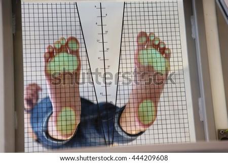 Foot examination - stock photo