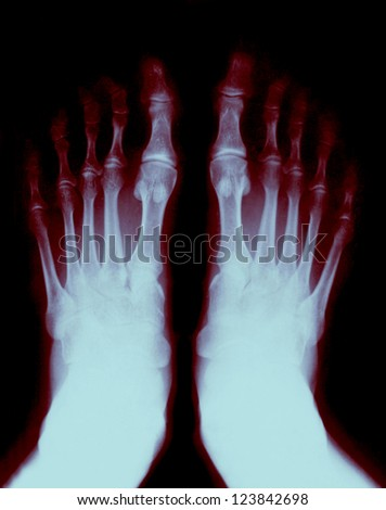 Foot fingers exposed on the x-ray - stock photo