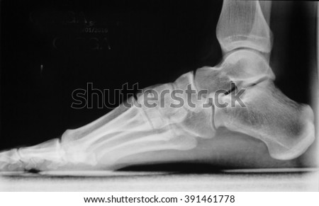 Foot, heel and toes injury Traumatology medical load bearing x-ray Orthopedic test scan image. - stock photo