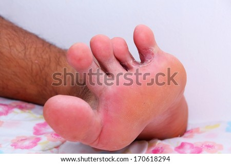 Foot is dermatitis close up - stock photo