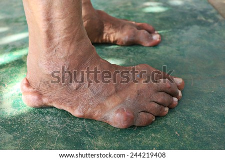 foot patient of gout - stock photo