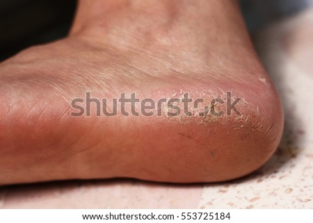 foot skin of woman has cracked heels