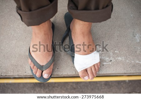 Foot ulcers - stock photo