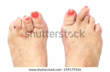 stock-photo-foots-look-like-after-six-op
