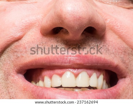 Four upper front teeth after crown installation - stock photo