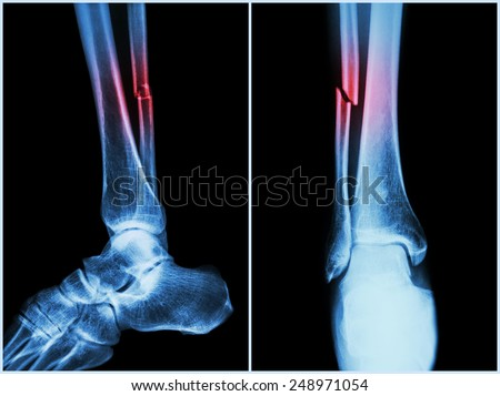 Fracture fibula ( leg bone ) .  X-ray of leg ( 2 position : side and front view ) - stock photo