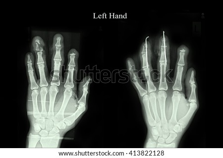 fracture middle finger and ring finger left hand