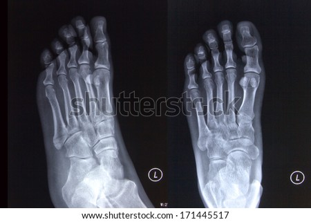 Fracture of foot