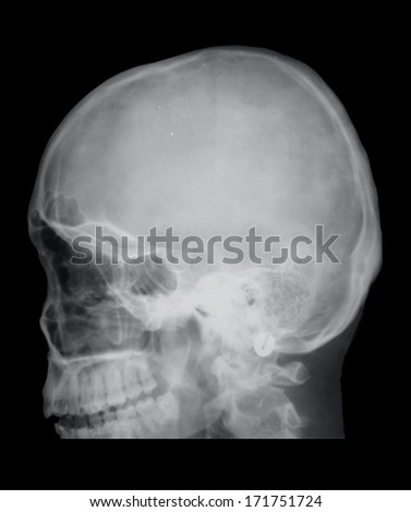 Fracture of the nose, X-ray - stock photo