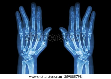 Fracture shaft of proximal phalange of ring finger ( film x-ray both hand AP ) - stock photo