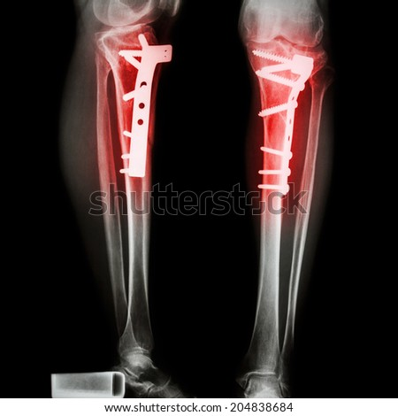fracture tibia(leg bone). It was operated and internal fixed by plate&screw - stock photo