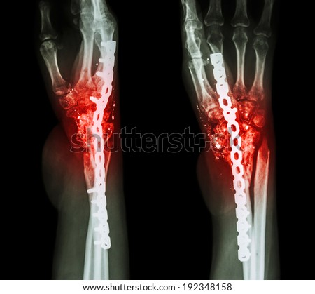 Fracture wrist and chronic infection. It was operated and internal fixed by plate and screw