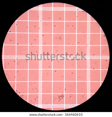 Fresh red blood  cells in CSF fluid sample on scale counting chamber. - stock photo