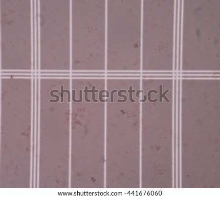 Fresh white blood cells in CSF fluid sample on scale counting chamber - stock photo