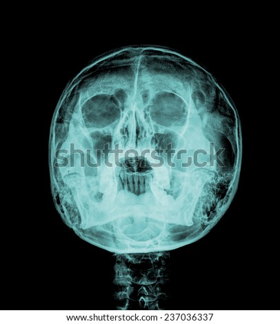 Front face skull x-ray image