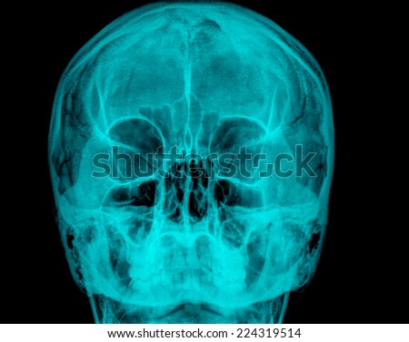 Front skull radiography