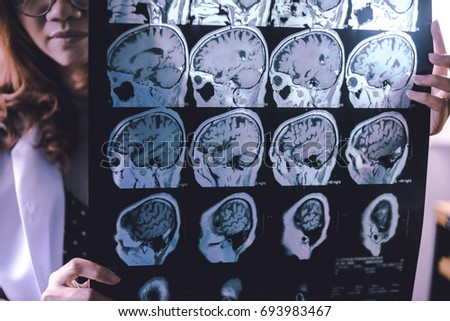 frontal lobe atrophy on MRI film  probably Frontotemporal Dementia