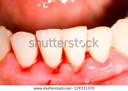 Frontal teeth after tartar removal, dental treatment - stock photo