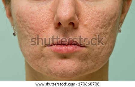 Frontal view of girl's cheeks and chin with acne scars - stock photo