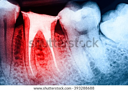 Full Obturation of Root Canal Systems On Teeth X-Ray - stock photo