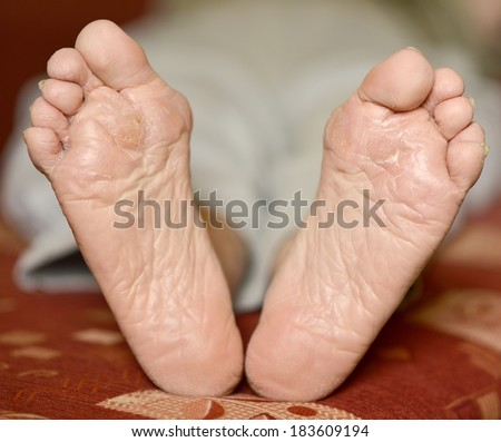 Fungus Infection on Man's Foot. Callus and hyperkeratosis on feet - stock photo