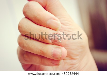 Fungus Infection on Nails Hand, Finger with onychomycosis. - soft focus,