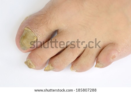 Fungus Infection on Nails of Man's Foot  - stock photo