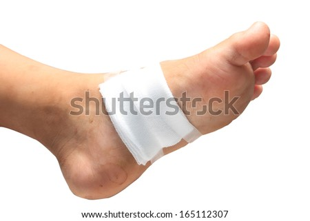Gauze bandage the foot,treating patients with foot ulcers
