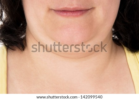 girl shows off his big chin isolated on white background - stock photo