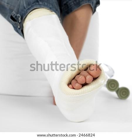 girl with a broken leg - stock photo