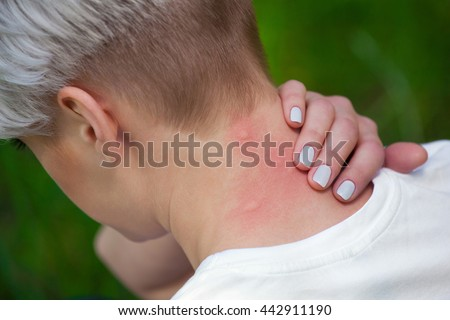 Girl with blond hair, sitting with his back turned and scratching bitten, red, swollen neck skin from mosquito bites in the summer in the forest.  Close-up up of visible insect bites. Irritated skin. - stock photo