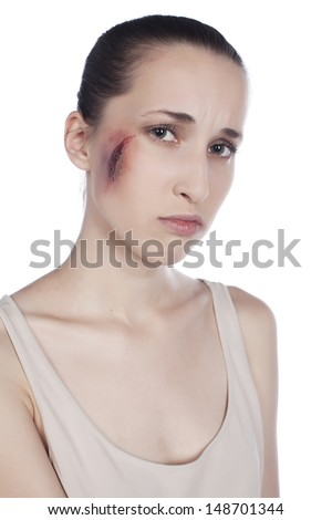 Girl with facial injury.woman