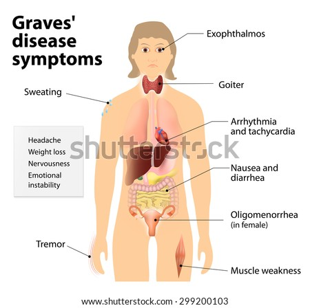 goiter stock images, royalty-free images & vectors | shutterstock, Skeleton