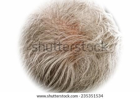 Gray hair thinning on senior man scalp - stock photo