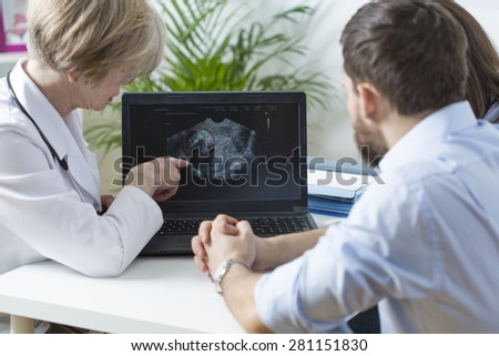 Gynecologist showing to young married couple fetus ultrasound
