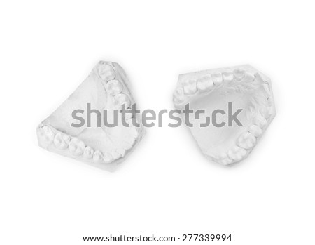 Gypsum model of human jaw on a white background - stock photo