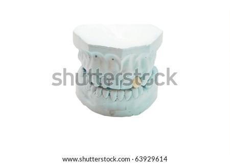 Gypsum model of human teeth - stock photo