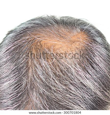 hair loss and grey hair. - stock photo