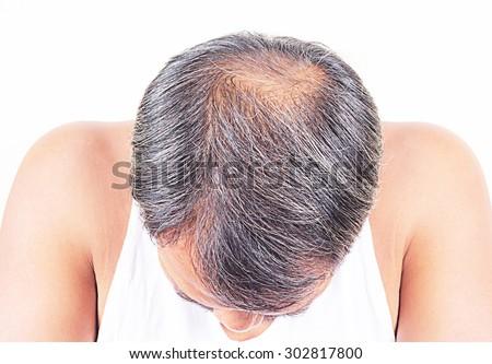 hair loss and grey hair, Male - stock photo