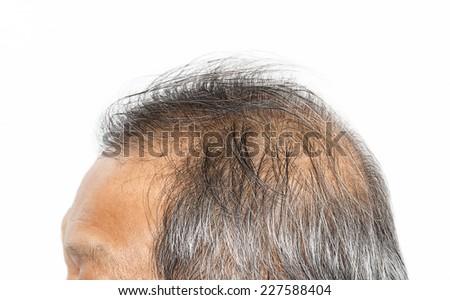 Hair loss , Male head with hair loss symptoms   - stock photo