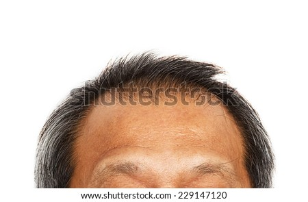 Hair loss , Male head with hair loss symptoms . - stock photo