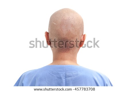 Hair loss patient after chemotherapy on white background isolated